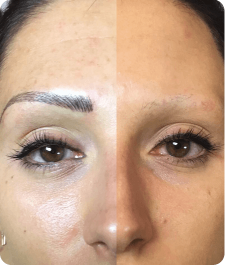 Microblading Get Perfect Eyebrows At Brow Studio Milwaukee